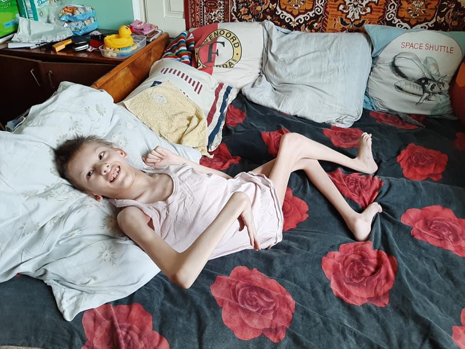 Родині з Болехова, яка виховує двох важкохворих діток, потрібна допомога